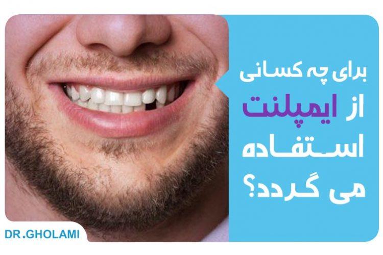برای چه کسانی از ایمپلنت دندان استفاده میگردد؟