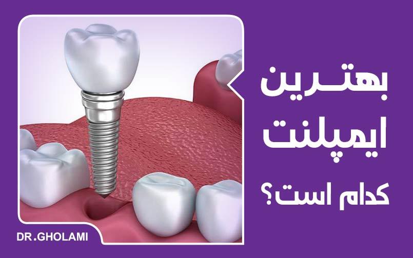 بهترین ایمپلنت دندان کدام است؟