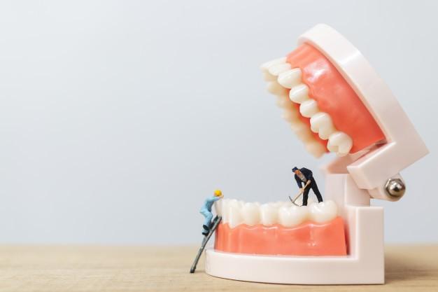 ایمپلنت دندان در مشهد