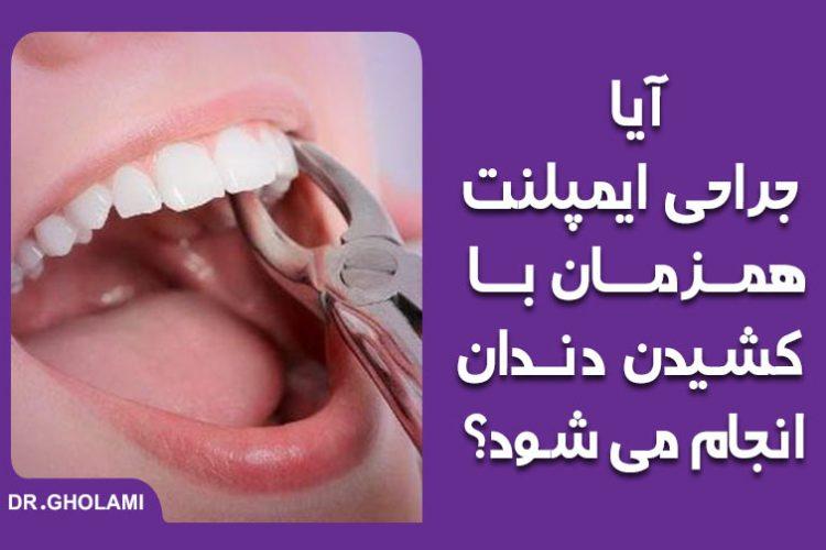 جراحی ایمپلنت همراه با کشیدن دندان در مشهد