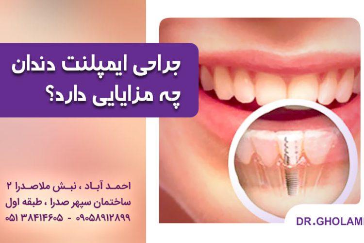 جراحی ایمپلنت دندان چه مزایایی دارد؟