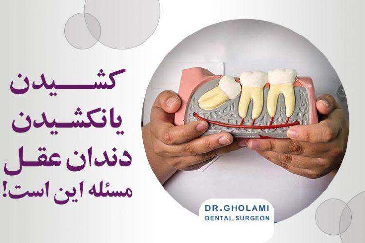 کشیدن یا نکشیدن دندان عقل (مشهد)