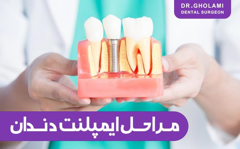 مراحل ایمپلنت دندان (مشهد)