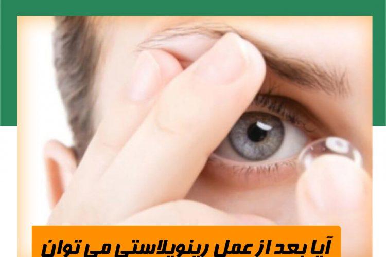 بعد از عمل رینوپلاستی می توان از لنز یا عینک استفاده کرد؟