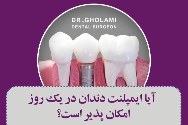 آیا ایمپلنت دندان در یک روز امکان پذیر است؟ (ایمپلنت فوری در مشهد)