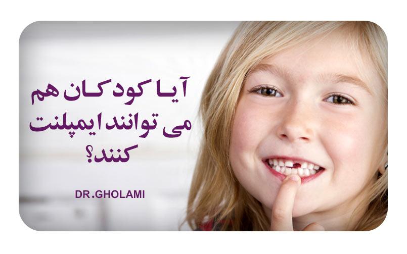 ایمپلنت برای کودکان در مشهد