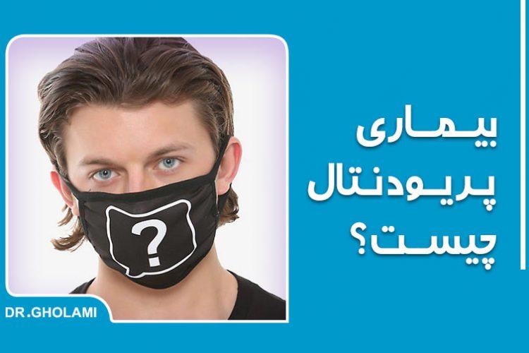 درمان التهاب لثه یا بیماری پریودنتال در مشهد