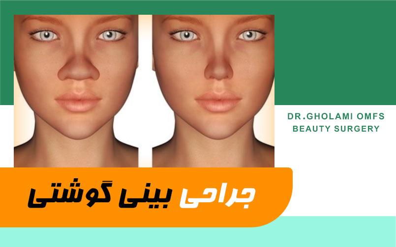 عمل جراحی بینی گوشتی در مشهد