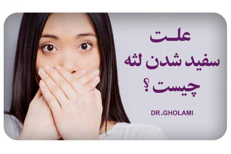 درمان سفید شدن لثه و ایمپلنت در مشهد