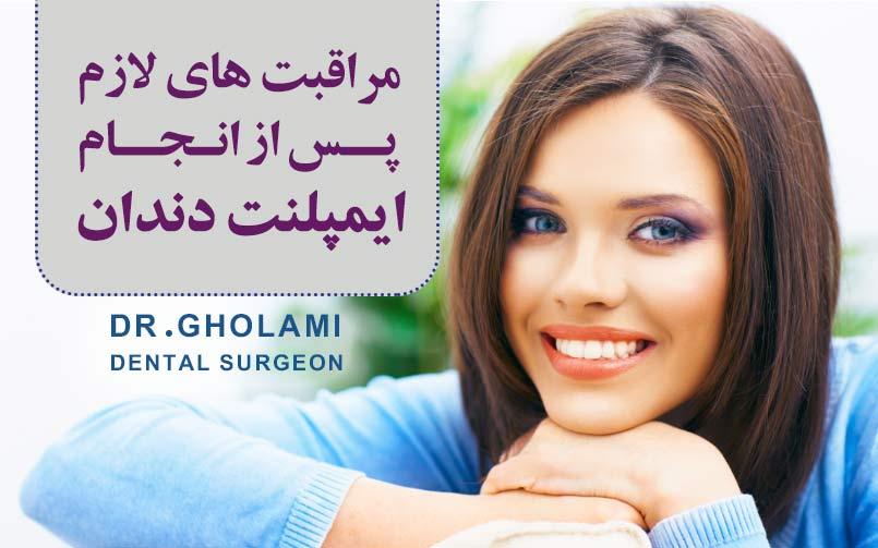 مراقبت بعد از ایمپلنت دندان در مشهد