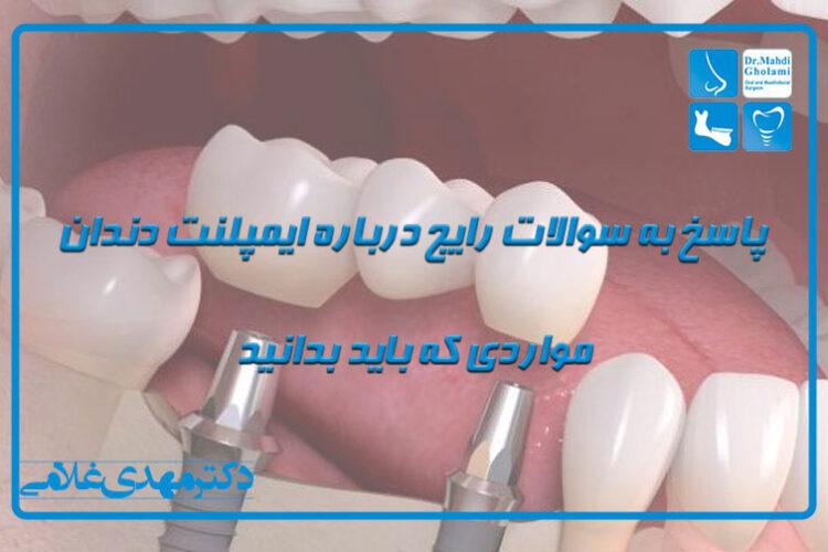 پاسخ به سوالات رایج درمورد ایمپلنت دندان