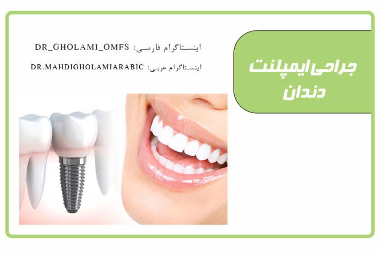 ایمپلنت دندان، همه چیز درباره ایمپلنت