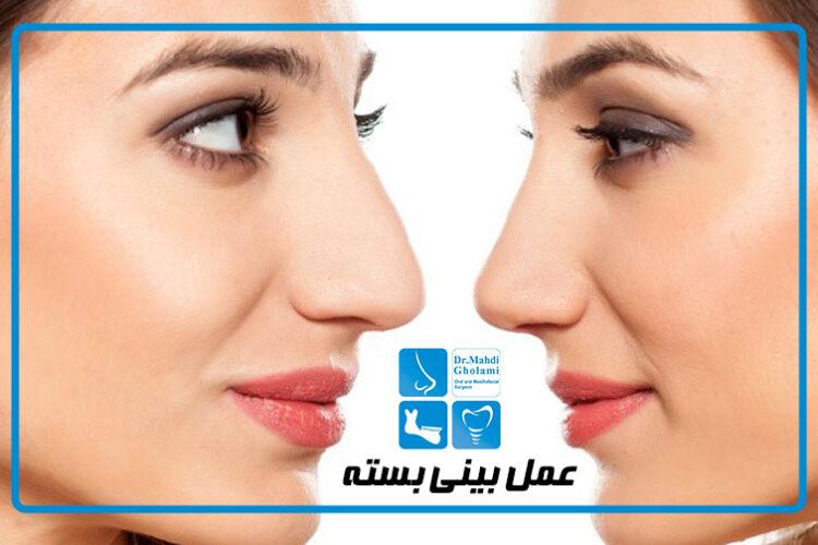 عمل جراحی بینی به روش بسته