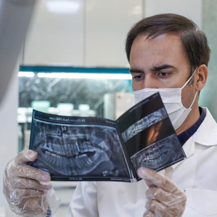 بهترین جراح ایمپلنت در مشهد