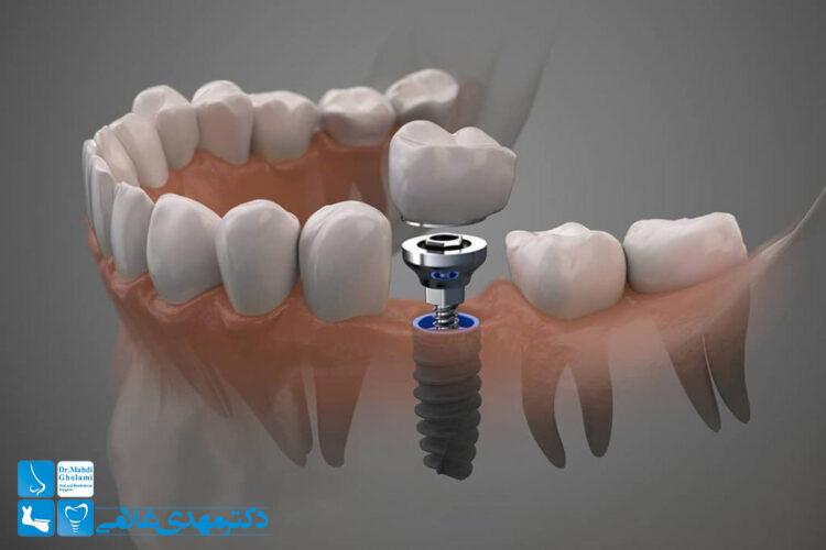 بهترین ایمپلنت دندان در مشهد با ماندگاری بالا