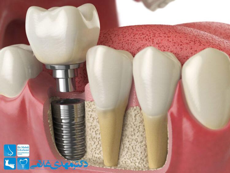 دکتر دندانپزشک ایمپلنت مشهد