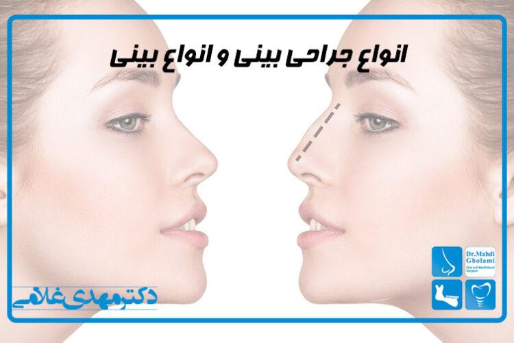 انواع جراحی بینی و انواع بینی