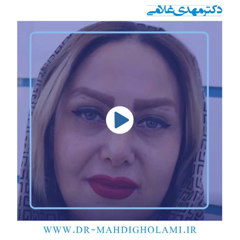 جراحی بینی ترمیمی یا ثانویه در مشهد _ دکتر مهدی غلامی