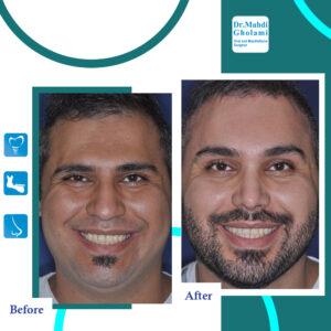 جراحی بینی در کرونا